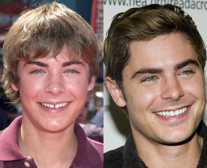 zac-efron-teeth.jpg