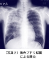 写真_肺炎9