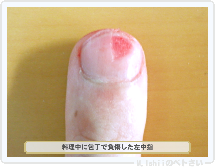 負傷した中指