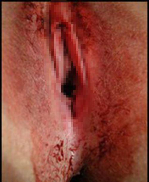 【※閲覧注意】生理中で血だらけのオマンコ見たい変態ちょっと来いwww 31枚 No.3