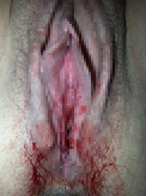 【※閲覧注意】生理中で血だらけのオマンコ見たい変態ちょっと来いwww 31枚 No.13
