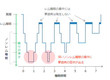夢遊病 チャート